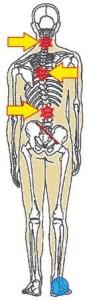 ゆがみと痛みの関係2
