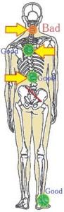 ゆがみと痛みの関係3